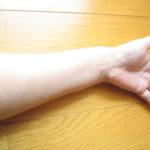 ステロイド使用停止後、一ヶ月ほど経過した肌の写真。